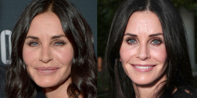 """""""I've Had All My Fillers Dissolved"""": Courteney Cox Admits to Getting *Tons* of Facial Work"""